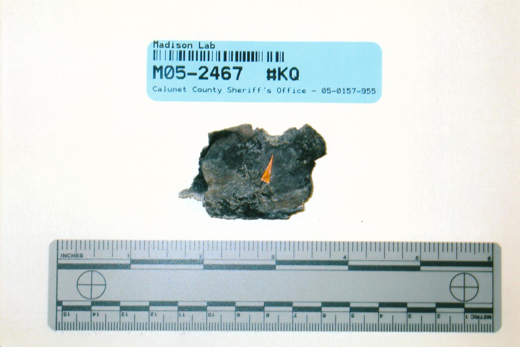 exhibit-430-cranial-bone-fragments-inner-defect